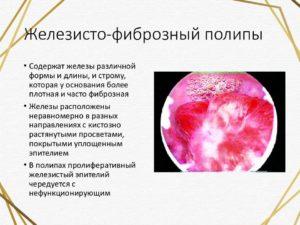 Железисто-фиброзный полип
