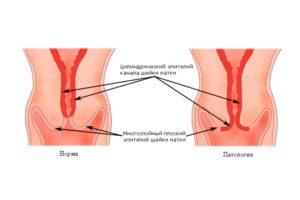 Эрозия шейки матки и эктропион