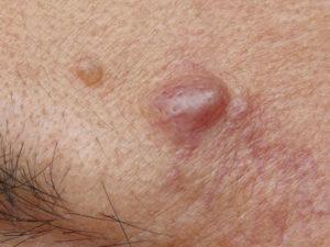 Воспаление желез в паху у женщин