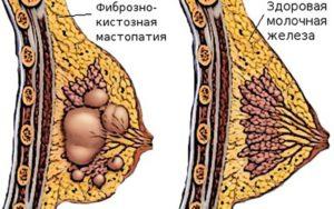 Как болит грудь при мастопатии