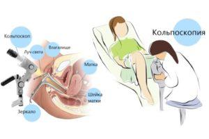 Кольпоскопическое исследование шейки матки