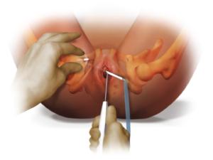 Спазм уретры у женщин