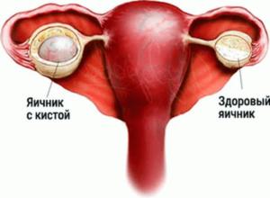 Температура при кисте яичника