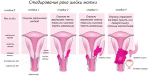 Симптомы при опухоли шейки матки
