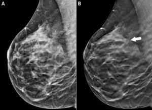 Когда делать маммографию после месячных