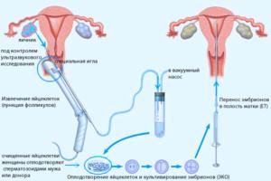 Как происходит забор яйцеклеток при эко