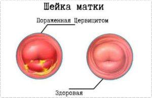 Эндоцервицит при беременности