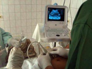 Инвазивная диагностика при беременности