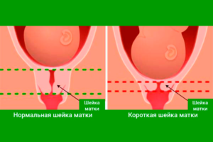 Длинная шейка матки при беременности