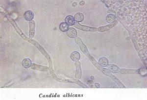 Кандида альбиканс у женщин лечение