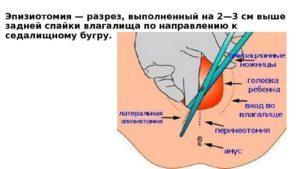 Надрезы при родах