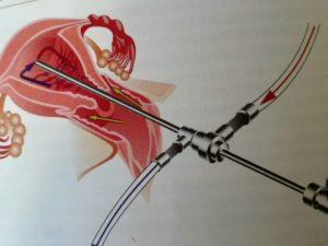 Как проводится гистероскопия эндометрия