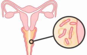Беременность при гарднерелле