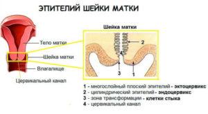 Эпителий шейки матки в норме