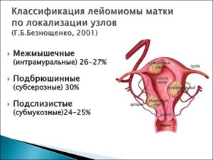 Что такое интрамуральная лейомиома матки