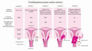 Рак ин ситу шейки матки