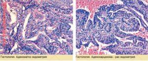Гистологическое исследование эндометрия матки