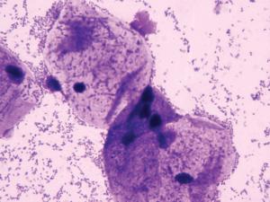 Бациллярная флора в мазке у женщин