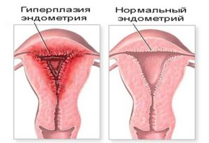 Что такое эндометрий тела матки