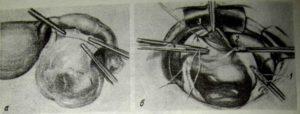 Опасна ли киста круглой связки на матке