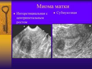 Миома матки с центрипетальным ростом