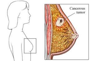Опухоль в грудине у женщин