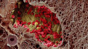 Что такое инвазия в онкологии