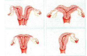 Формы матки у женщин