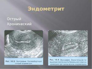 Как определить эндометрит