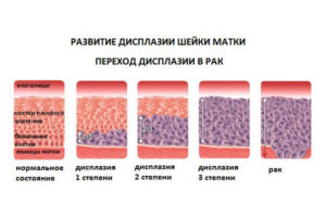 Причины возникновения дисплазии шейки матки