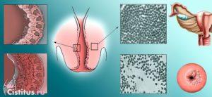 Лечение при искривлении шейки матки
