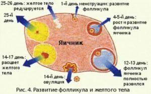 Доминантный фолликул в правом яичнике