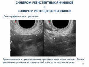 Обеднение фолликулярного аппарата яичников что это такое