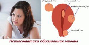 Психосоматика миома матки