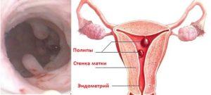 После удаления полипа эндометрия когда начнутся месячные