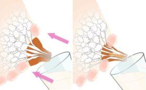 Как расцеживать лактостаз
