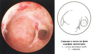 Атрофия эндометрия что это такое