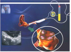 Как изменяются яичники после ЭКО