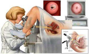 Можно ли делать гистероскопию во время месячных