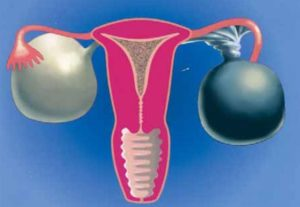 Перекрут яичника у женщин симптомы