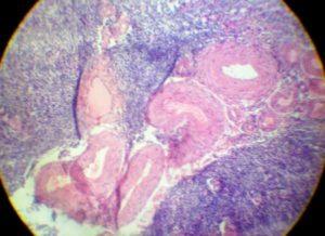 В яичниках белые тела