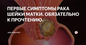 Как проявляется рак шейки матки у женщин