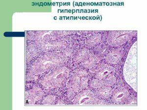 Что такое аденоматозная гиперплазия