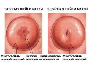 Что такое эктопия шейки матки