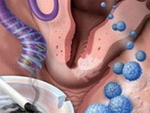 Эрозия шейки матки и вирус папиллома человека