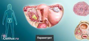 Гнойный эндометрит у женщин
