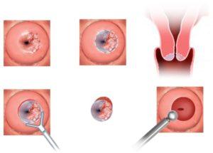 Атипия что это такое в гинекологии