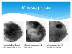 На какой день после месячных делают маммографию
