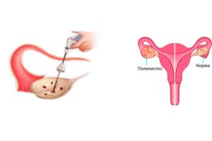 Дриллинг яичников и беременность