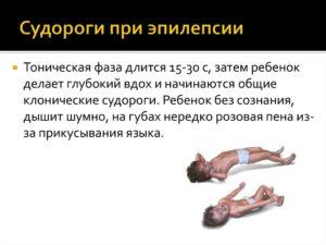 Можно ли рожать при эпилепсии